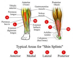 shin splints1
