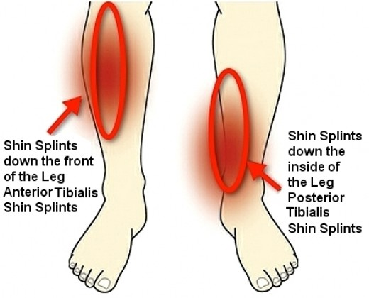 what are shin splints? « sutherland podiatry, Cephalic Vein