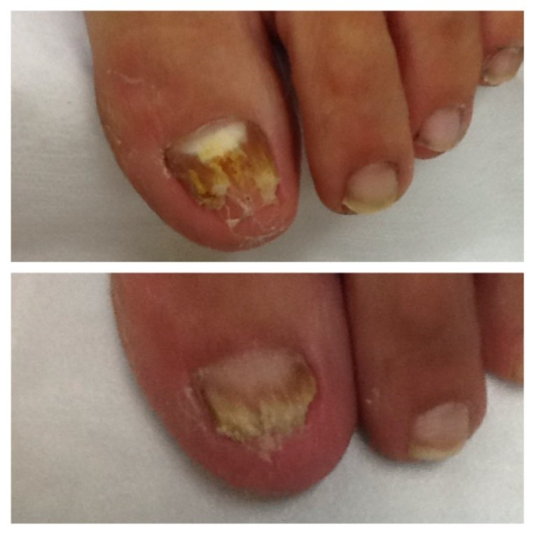 Do You Have A Fungal Toenail That You Have Been Trying To Treat With ...