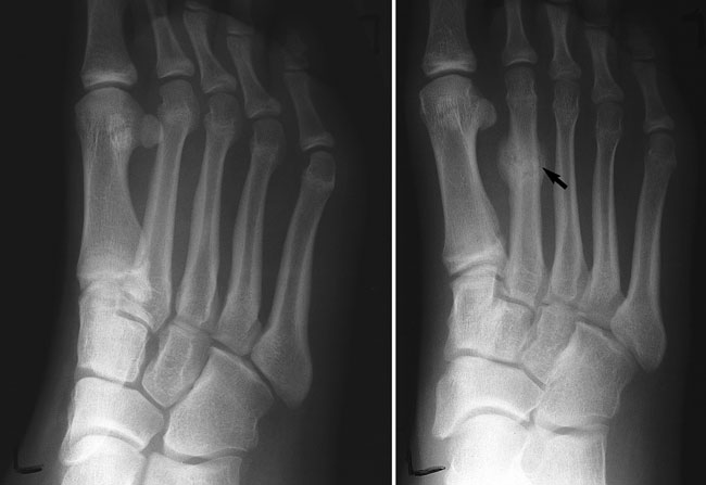 What Are Stress Fractures Of The Feet? - Sutherland ...