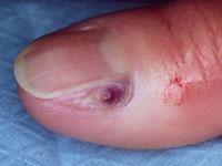 melanoma-5