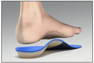custom-orthotic