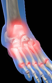 arthritic foot pain