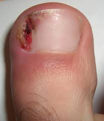 ingrown toenail 2
