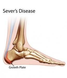 severs-disease