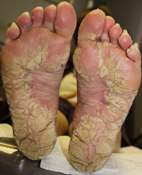 What Is Severe Hyperkeratosis Sutherland Podiatry