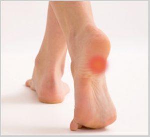 heel pain 1