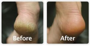heel-calluses